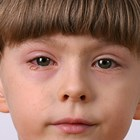 No need to quarantine kids with conjunctivitis